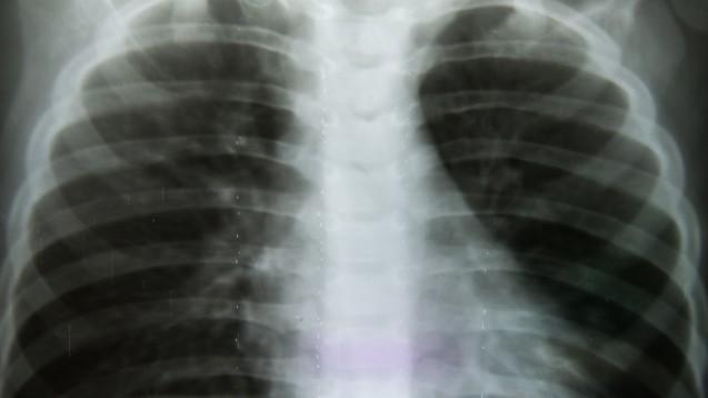 Schätzungen zufolge sind inDeutschlanddrei bis fünf Millionen, in denUSAetwa 16 Millionen und weltweit etwa 600 Millionen Menschen an einer COPD erkrankt. (Foto:toeytoey / Fotolia)