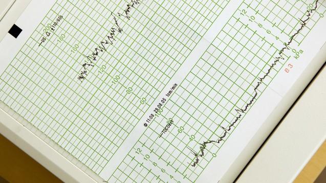 Der Hersteller von Misodel warnt in einem Rote-Hand-Brief vor exzessiven uterinen Tachysystolien. (Foto: dpa)