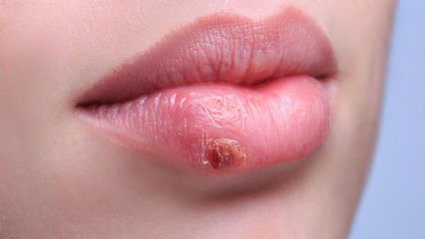 Lästige Bläschen bei Herpes labialis
