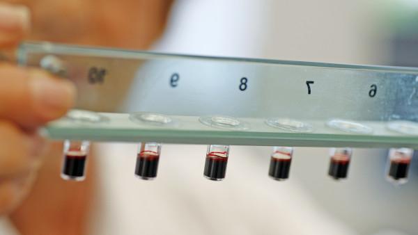 Bayer beantragt Zulassungserweiterung für Xarelto