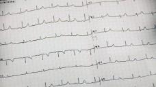 Bei der Kombi bestimmter Hepatitis-C -Mittel mit Amiodaron können Herz-Rhythmus-Störungen auftreten. (Bild: Petra Beerhalter - Fotolia.com)