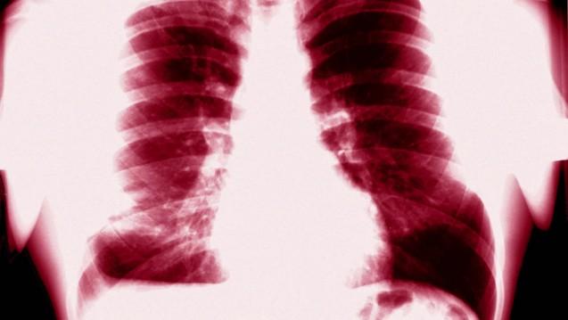Forscher der TU München und der Texas A&M University haben einen Wirkstoffmechanimus entdeckt, mit dem der Schutzschild der Tuberkulose geknackt werden könnte. (Foto: Picture Alliance)