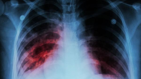 TB-Fallzahlen erneut rückläufig