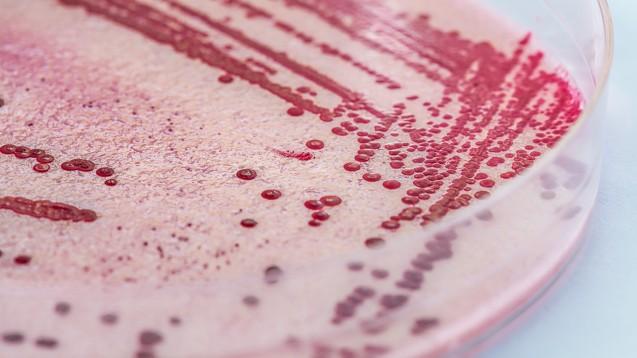 Die Antibiotikaforschung läuft nach Ansicht der WHO bedrohlich langsam. Hoffnung machen vor allem Wirkstoffe, die sich noch in frühen Entwicklungsstufen befinden. (r / Foto: Photographee.eu / stock.adobe.com)