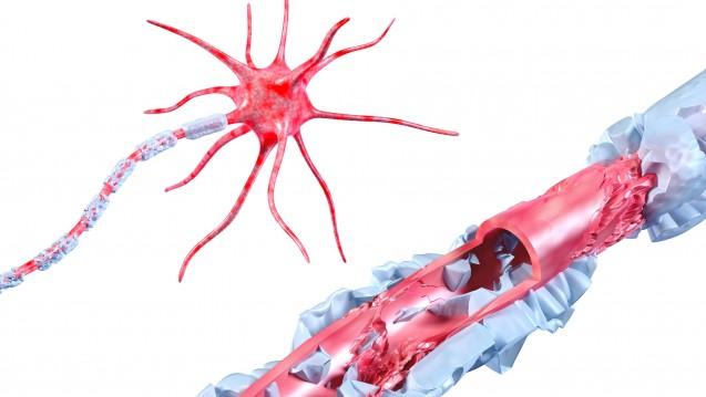 Bei Multipler Sklerose kommt es durch immunvermittelte Entzündungen zum Verlust der Myelinisierung im ZNS. (Foto: AG visuell / Fotolia)