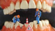 """""""Baustellen"""" im Mund sind eine Kontraindikation für Xgeva. (Bild: nmann77/Fotolia)"""