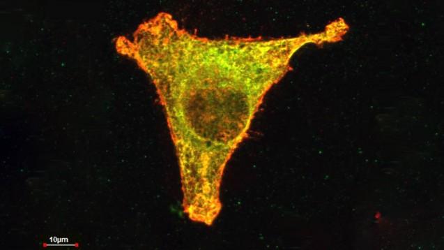 Thalidomid inaktiviert  in einer Tumorzelle einen bestimmten Proteinkomplex (gelb). Dieser Mechanismus ruft auch Fehlbildungen bei Ungeborenen hervor. In der Apotheke gibt es die Substanz nur auf  T-Rezept. (Foto: Bassermann/MRI)