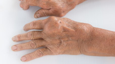 Febuxostat wird bei Gicht angewendet, wenn es bereits zu Uratablagerungen gekommen ist (einschließlich Gichtknoten und/oder Gichtarthritis) (Foto:chatuphot / adobe.stock.com)