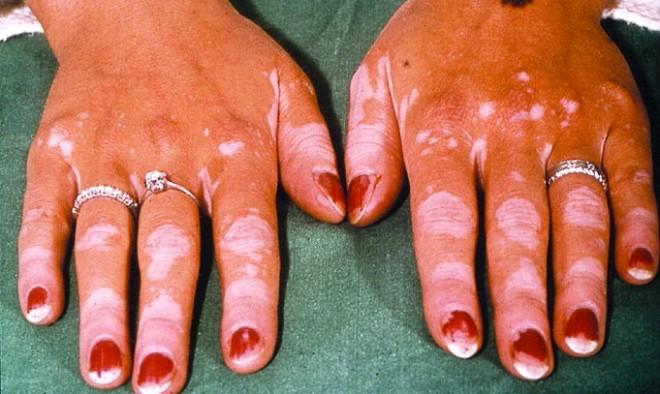 D122010_pri_vitiligo.jpg