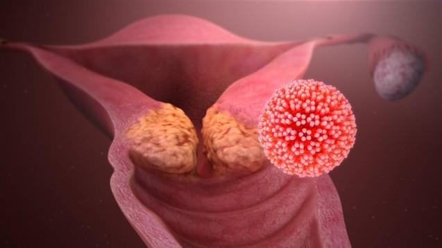 Immer mehr Studien weisen die Effektivität einer HPV-Impfung zum Schutz vor zervikalen intraepithelialen Neoplasien (CIN) und Gebärmutterhalskrebs nach. Ein frühes Impfalter scheint sich positiv auf die Impfwirksamkeit von Gardasil oder Cervarix auszuwirken. (s / Foto: imago)