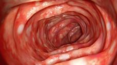 Morbus Crohn und Colitis ulcerosa stellen die beiden Hauptentitäten der chronisch-entzündlichen Darmerkrankungen (CED) dar. (s/ Foto: crevis / AdobeStock)