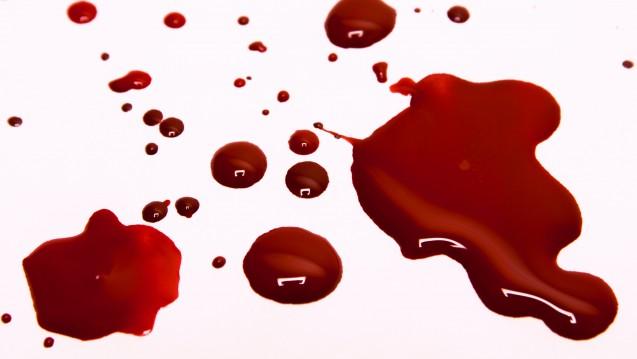 Viele Komplikationen, zum Beispiel Blutungen, unter NOAK könnte man vermeiden. (c/Foto:mizina/stock.adobe.com)