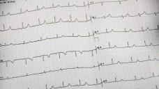 Laut Deutscher Herzstiftung treten Herzleiden im Osten Deutschlands häufiger auf. (Foto: Petra Beerhalter / Fotolia.com)