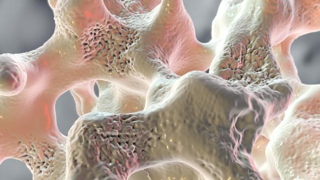Nachdem die Europäische Arzneimittel-Agentur bei Romosozumab lange gezögert hatte, hat sie sich im dritten Anlauf nun doch für eine Zulassung des Sclerostin-Antikörpers in Evenity® ausgesprochen.(s / Foto: Kateryna_Kon / stock.adobe.com)