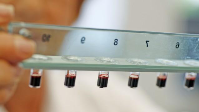 Wie ist das Risiko-Nutzen-Verhältnis von Rivaroxaban? Die für die Erforschung des Blutverdünnungsmittels zuständige Wissenschaftlerin von Bayer analysiert einige Blutproben. (Foto: picture alliance / dpa)