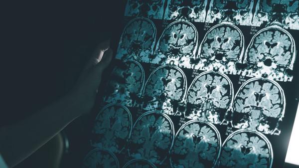 MSD bricht Studie mit Alzheimer-Mittel ab