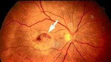 Lucentis (Wirkstoff Ranibizumab) wird vor allem bei altersbedingter Makuladegeneration injiziert. Nun kam in den USA eine weitere Zulassung hinzu. (Foto: BVA)