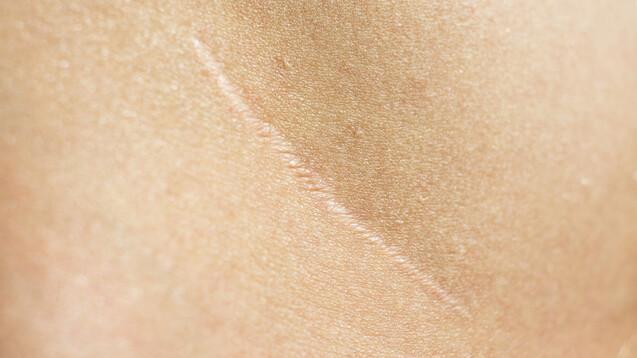 Bei Mäusen konnte der Wirkstoff Verteporfin die Narbenbildung verhindern, sogar Haarfollikel und Drüsen wies die neue Haut auf.(c / Foto: Андрей К / AdobeStock)