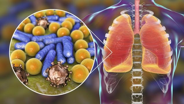 Meropenem/Vaborbactam soll unter anderem bei nosokomialen Pneumonien durch multiresistente gramnegative Erreger eingesetzt werden. (r / Foto: Kateryna_Kon / stock.adobe.com)