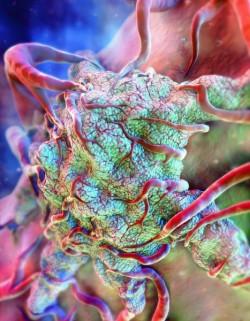 D33_tumor.jpg