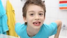 Konsequente Zahnpflege ist von klein auf wichtig. (Foto:sabine hürdler / Fotolia)