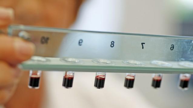 Wie ist das Nutzen-Risiko-Verhältnis von Xarelto? Eine  Bayer-Wissenschaftlerin analysiert Blutproben. (Foto: picture alliance /  dpa)
