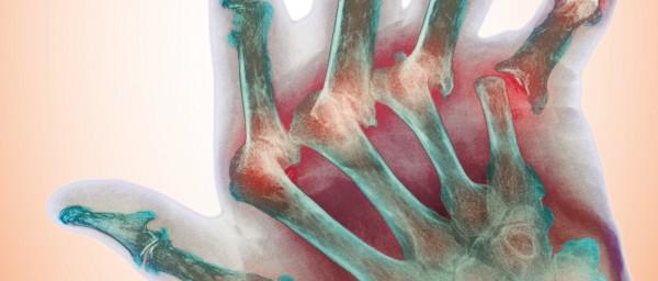 Die rheumatoide Arthritis