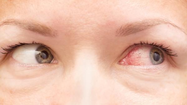 Bei gereizten Augen: Arzneimittel fast alle geeignet, Euphrasia fällt durch