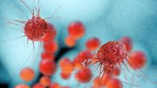 Kinaseinhibitoren könnten noch bei weiteren Tumorerkrankungen helfen. (Foto:fotoliaxrender / stock.adobe.com)