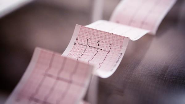 Das Virus und das Herz – von Herzstillstand bis Herzmuskelentzündung
