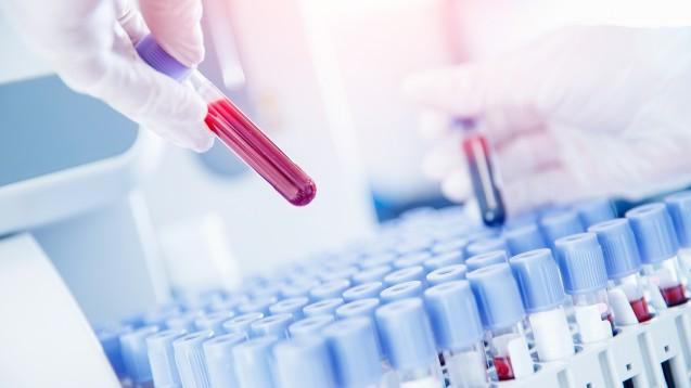 BMG: Wenn kein PCR-Test durchgeführt wurde, gelten die gleichen Impf-Empfehlungen wie bei Personen, die nie an COVID-19 erkrankt waren. Ein Antikörpernachweis wird nicht als ausreichender Nachweis für eine überstandene COVID-19-Erkrankung erachtet. (s /Foto: Parilov / AdobeStock)