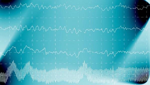 Behandlung der Epilepsie