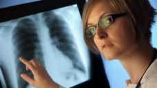 Apotheker und Ärzte luden gemeinsam zum Lungencheck. (Bild: pix4U/ Fotolia)