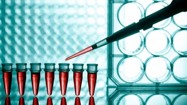 HIV-Forscher warnen USAund andere Geldgeber vor Kürzungen. (Foto:picture alliance/Shotshop)