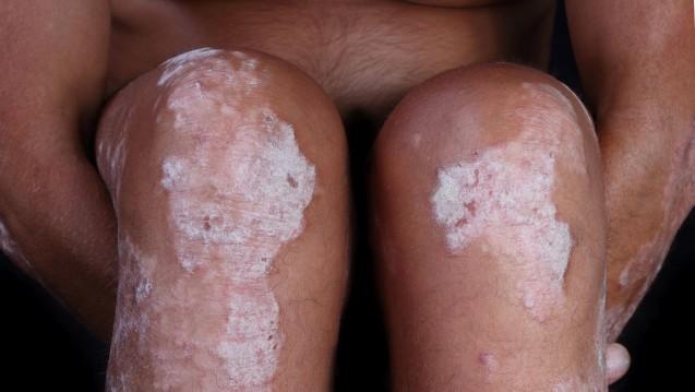 Ab sofort bei mittelschwerer bis schwerer Plaque-Psoriasis: IL-23 Antikörper Guselkumab inTremfya®. (Foto: Antonio Nardelli / stock.adobe.com)