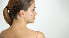 Akne ist die die häufigste dermatologische Erkrankung im Jugendalter. (Foto: kasanka19 / stock.adobe.com)
