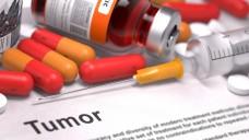 Mangel an Belastbaren Daten: Bei mehr als der Hälfte aller in der Onkologie eingesetzten Arzneimittel basiert die Zulassung einzig auf weichen Parametern.  (Bild: tashatuvango- Fotolia.com)