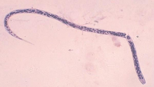Mysteriöse Zellen bei Fadenwürmern