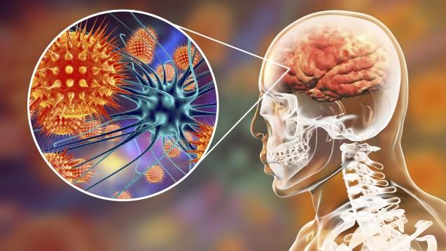 Bei MS-Patienten unter immunsupressiver Therapie wie Fingolimod sollten Ärzte und Apotheker bei Symptomen eines MS-Schubs ohne Besserung durch Akutmedikation auch an eine Varizella-zoster-Meningoenzephalitisdenken. (Foto:Kateryna_Kon / stock.adobe.com)