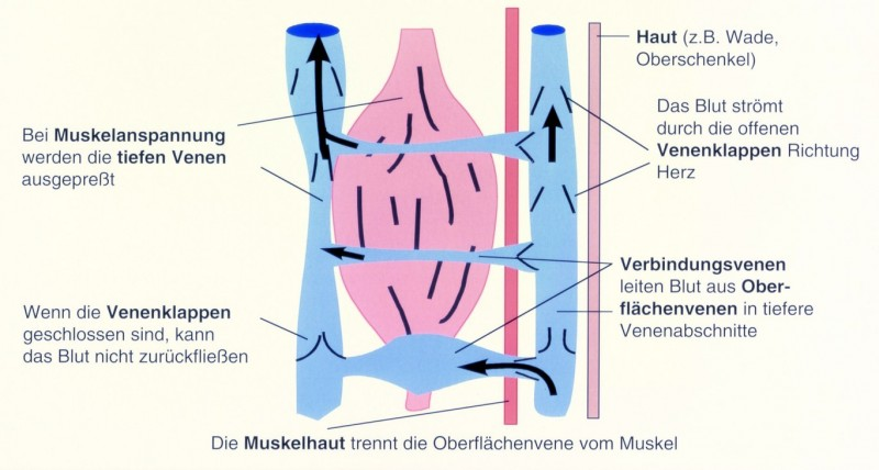 Varice profunde ale extremităților inferioare: semne, simptome, tratament