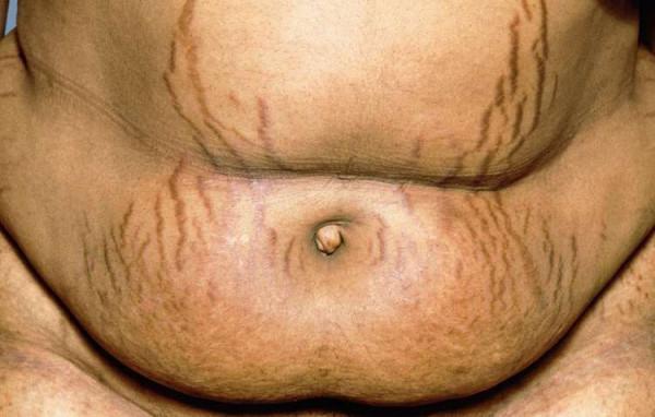 Erstes Somatostatin-Analogon bei Morbus Cushing