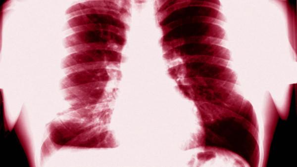 Arzneimittel gegen den Tuberkulose-Schutzschild?