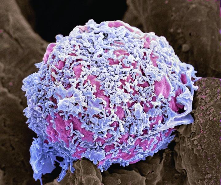 Unter mann knoten brustwarze Brustkrebs: Die