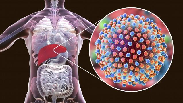 Hepatitis-C-Infektionen sind oft unbemerkt - ihre Spätfolgen können dagegen dramatisch sein. Die Behandlung ist teuer - doch sie senkt, einer neuen Studie zufolge, die Sterblichkeit. ( r / Foto: imago)