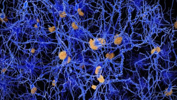 Schwerer Rückschlag für Alzheimer-Mittel von Eli Lilly