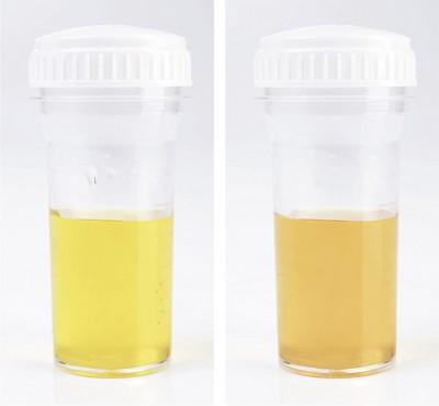 Urin weiße stücke im Weiße Flocken