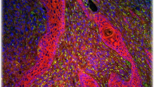Papillomaviren  fördern auch Hautkrebs