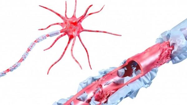 MS-Arzneimittel kann verletzte Nerven heilen