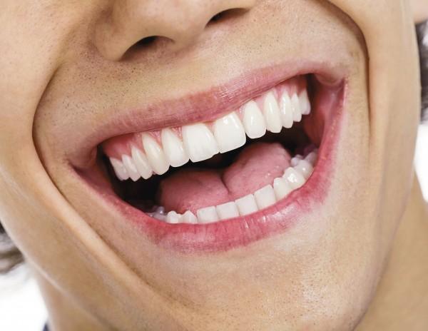 Zeigt her eure Zähne