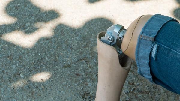 Forscher will Bein-Prothesen aus Plastikmüll entwickeln